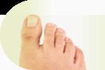 medycyna dla stóp