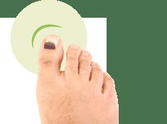 specjalistyczna pielęgnacja stóp