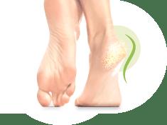 leczenie pękających pięt