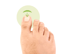 rekonstrukcja paznokcia