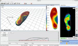 Projektowanie 3D wkładek ortopedycznych