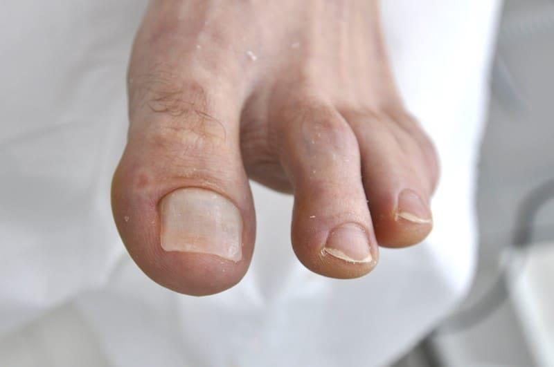 Płytka paznokciowa po wykonaniu rekonstrukcji.