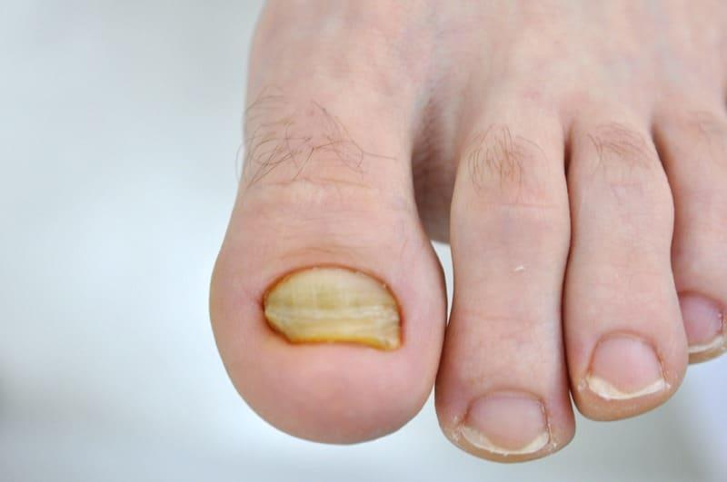 Płytka paznokciowa przed oczyszczeniem